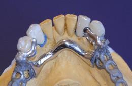 Protezy szkieletowe 3