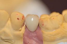 Implanty 24