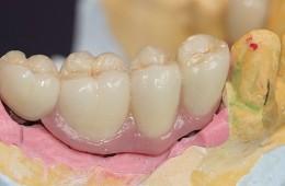 Implanty 25