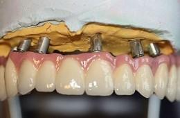 most porcelanowy na implantach Ankylos okrężny