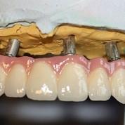 Most na implantach Ankylos