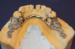 Protezy szkieletowe 1